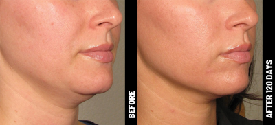 Ultherapy Non-Invasive Modern Facelift